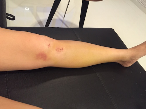 acl surgery stitches removed